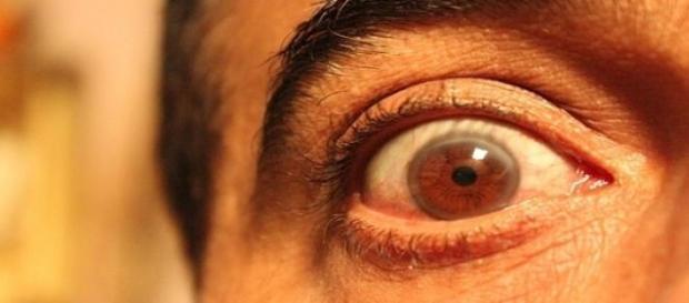 Los ojos ciegos bien abiertos