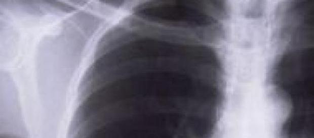 Cancerul pulmonar și cauzele apariției