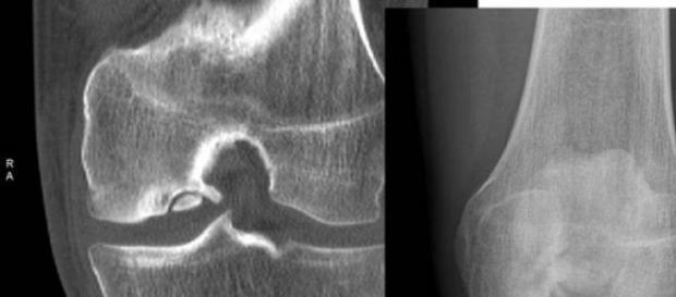 La osteoartritis afecta a las articulaciones