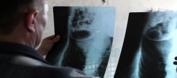 Ofiara tortur pokazuje swoje złamane żebra