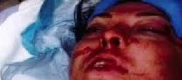 O tânără a fost desfigurată de polițiști