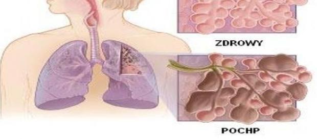Przewlekła choroba płuc (POChP)