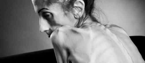 Rachael Farrokh, ragazza anoressica di 18 kg