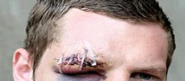 Jovem agredido pode vir a ter problemas de visão.