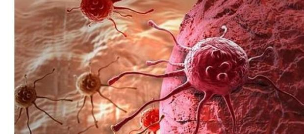 Un microchip que separa las células con cáncer