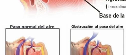 la apnea del sueño, causas