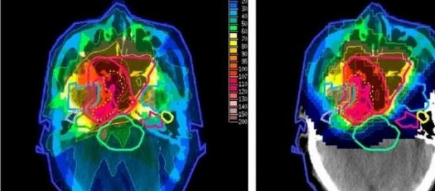 Terapia protonica, la nuova radioterapia