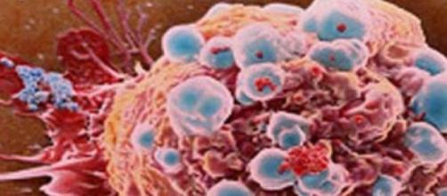 Es un avance para la lucha contra el cáncer