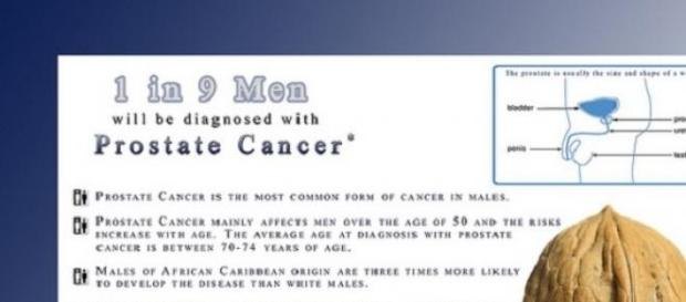 The most common cancer in men: prostate cancer