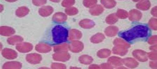 Test sangue e saliva per diagnosticare cancro