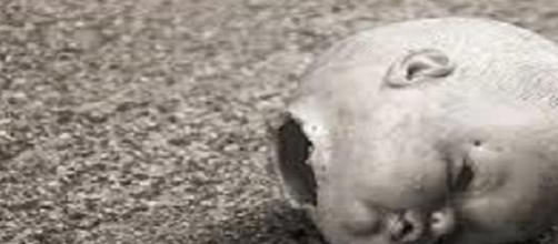El bebé tenía el cuerpito mutilado