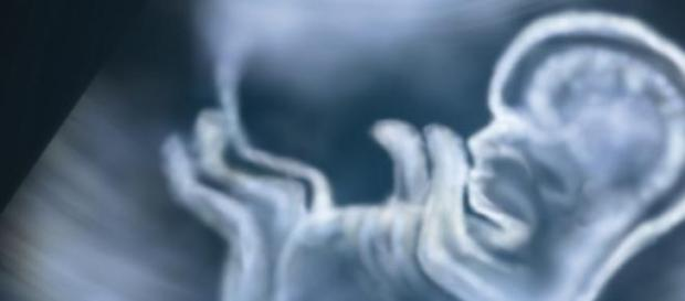 casos de sífilis congênita aumenta no Brasil