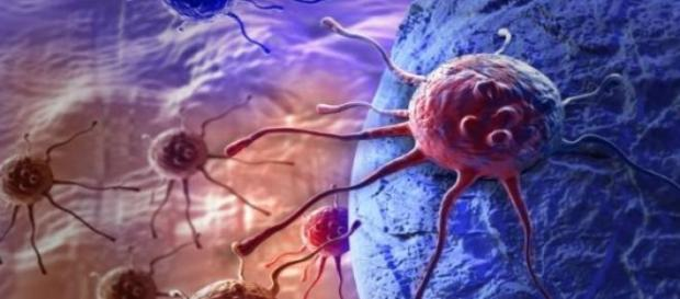 Nivolumab approved in the UK to treat lung cancer.