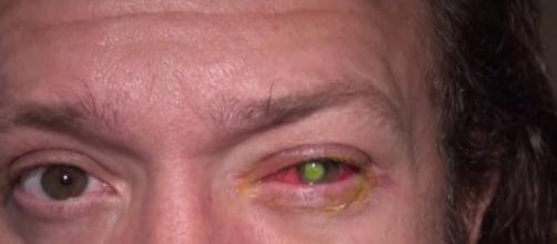 Chad Groeschen: lentillas y pérdida de visión