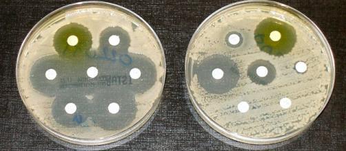 Test de sensibilidad/resistencia a antibióticos