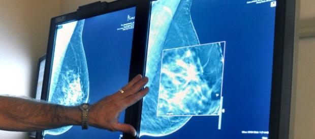 Novas tecnologias usadas no combate ao câncer.