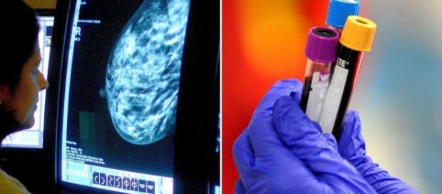 Análisis de sangre para detectar cáncer de mama