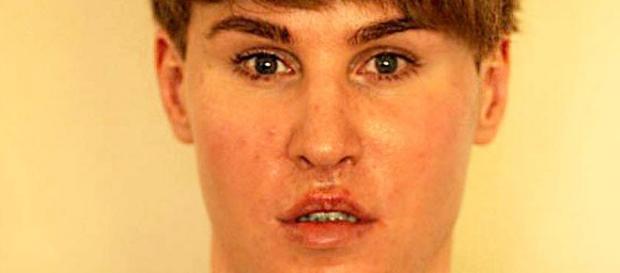 Toby Sheldon de 35 anos fez várias cirurgias