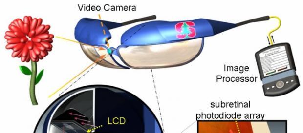 Gafas y microchip para devolver la vista