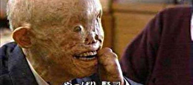 Uno dei sopravvissuti alla bomba atomica