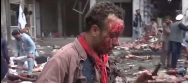Supravieţuitor al unui atac cu bombă în Afganistan