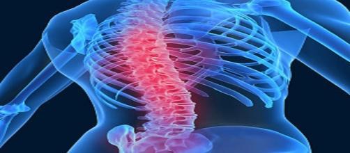 Il mal di schiena lungo i centri del dolore