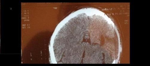 La radiografia col volto di Gesù