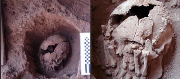 Cranio decapitato con mani che coprono gli occhi