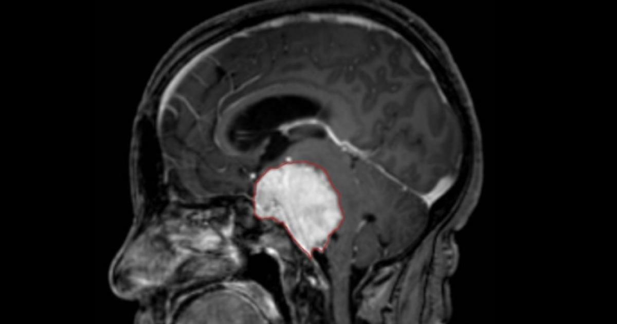 cuanto vive una persona con metastasis cerebral