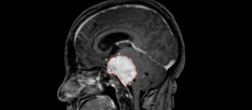 Esperanza terapéutica para el cáncer cerebral