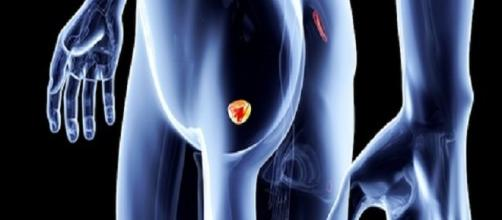 Prevenzione per cancro alla prostata