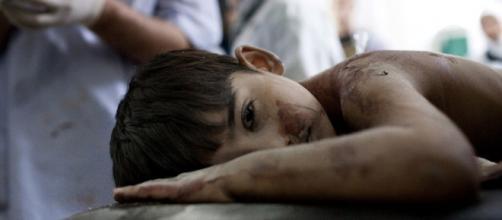 Menino da Síria, vítima da guerra.