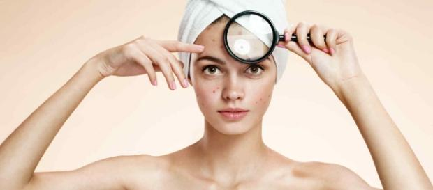 ¿Cómo tratar el acné y porqué aparece?
