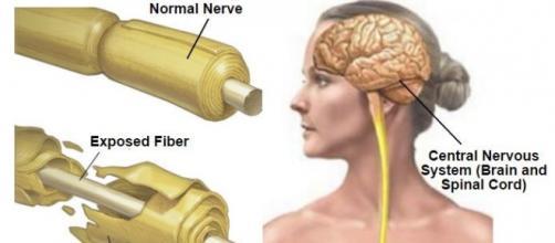 Nervo sano e danneggiato dalla sclerosi multipla