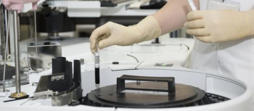 Zika: studio sulla trasmissione sessuale del virus