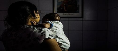 Bebes com microcefalia receberão benefício