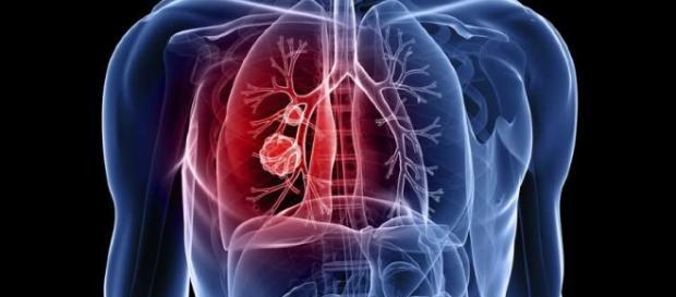 Ouvir o que seu corpo está dizendo pode te ajudar a detectar a doença!