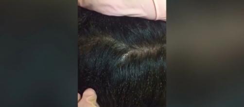 Os pontos brancos na cabeça da menina são ovos de piolho (Crédito: YouTube/MUSTSEE)
