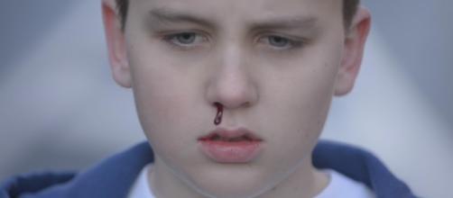 Consecuencias del Bullying en los niños