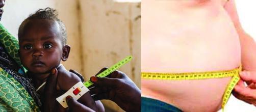 La paradoja entre morir de hambre o de obesidad