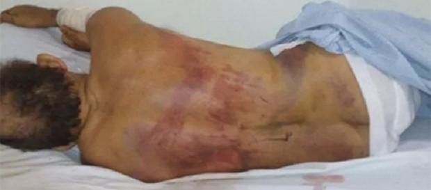 Homem tem ferimentos pelo corpo
