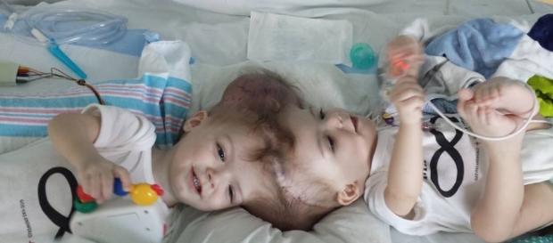 Jadon e Anias McDonald, de 13 meses, são separados após longas horas de cirurgia
