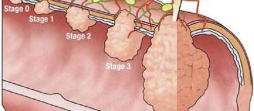 Una dieta grassa attiva un meccanismo che favorisce l'infiammazione e il cancro intestinale.