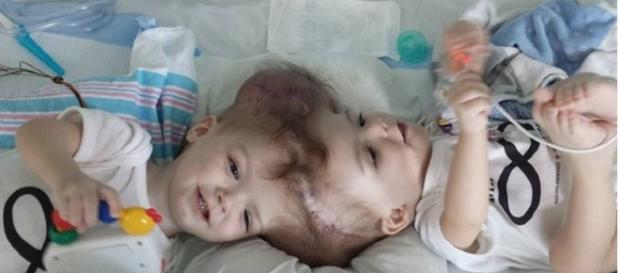 Os gêmeos foram separados através de cirurgia.