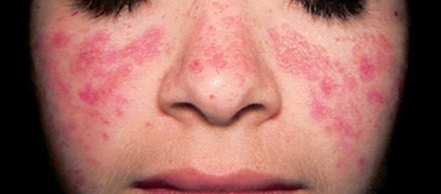 Dar visibilidad a los pacientes con Lupus