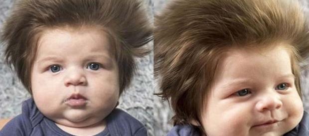 O pequeno é considerado o bebê mais peludo da internet