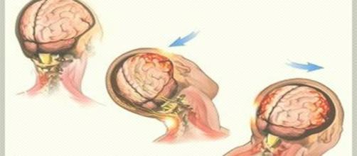 Simulação de como acontece uma concussão cerebral