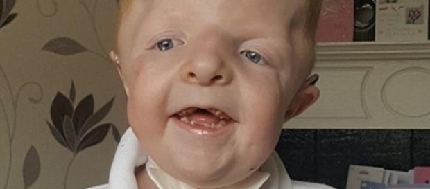 Imagem de garoto com os ossos da face quebrados