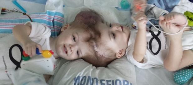 Bebês siameses ligados pelo crânio