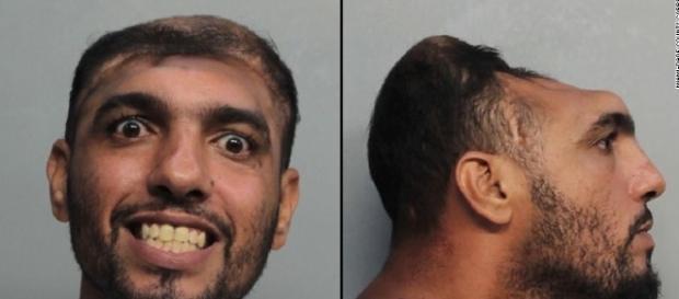 Imagem de homem com apenas metade da cabeça
